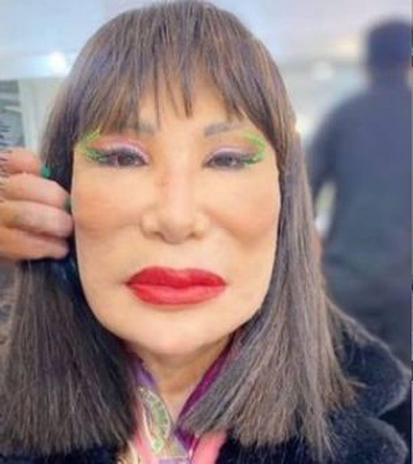 Lyn May se hizo un nuevo retoque en el rostro